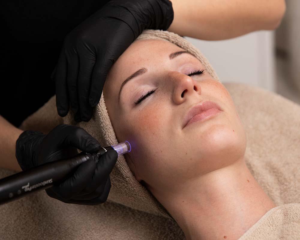 microneedling prospa kosmetik kosmetikstudio imst